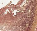 A88 Koronarsklerose mit Thrombose