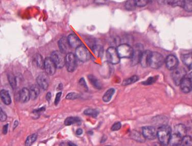 Plattenepithel ca cervix uteri